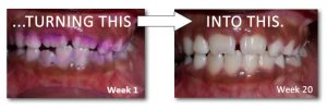 Child teeth after 1 week to after 20 weeks showing improved teeth and gums
